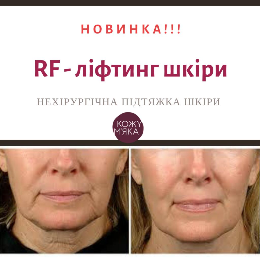 RF - ліфтинг обличчя